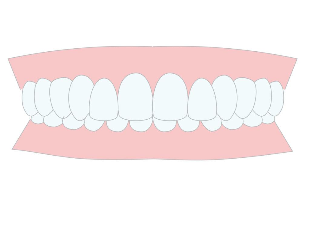 過蓋咬合の治療法